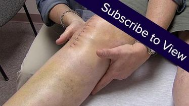 Total Knee Replacement, 7 days post: Lymphatic Drainage, 1