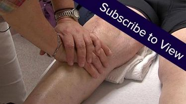 Total Knee Replacement, 14 days post: Knee Mobilization