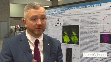 AACR Mike Batey Interview on the analysis of n-glycans by multi mass spectrometry imaging