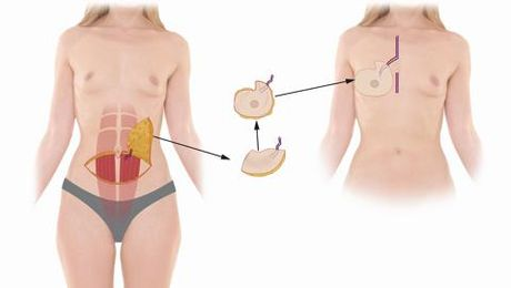 Breast Reconstruction with Dr. Maman