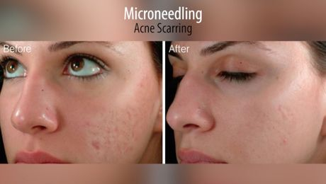 Micro-Needling: A Promising Gateway for Facial Rejuvenation