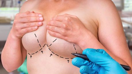 Breast Revision - It's More Complicated the Second Time Around