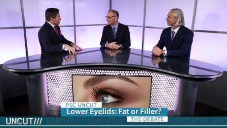 Fat Grafting or Fillers for Lower Eyelid Rejuvenation